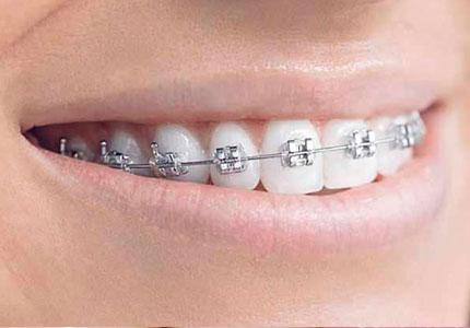 Ortodoncia MBT 2021 1A