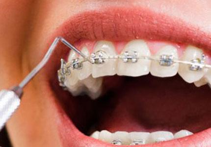 Ortodoncia Inicial 2021 - 1B