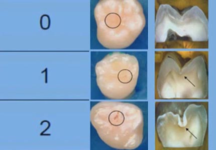 Odontología Minimamente Invasiva 2021 1A
