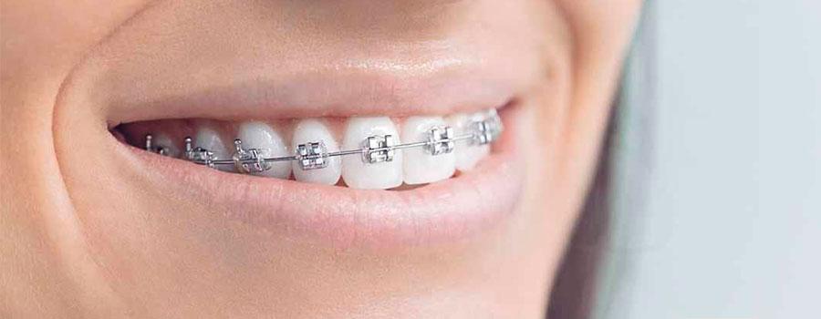 Ortodoncia MBT 2019