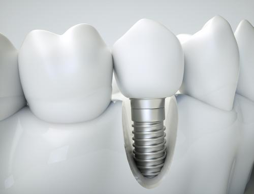 Rehabilitación Oral con Implantes 2018