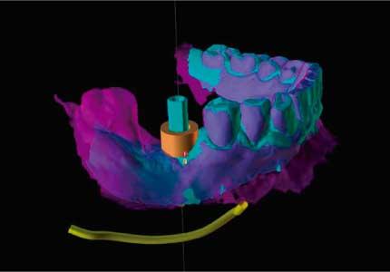Odontología Digital 2020