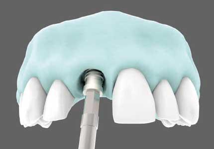 Implantes Inmediatos 2020